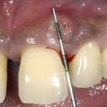 parodontitis1