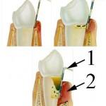 parodontitis2