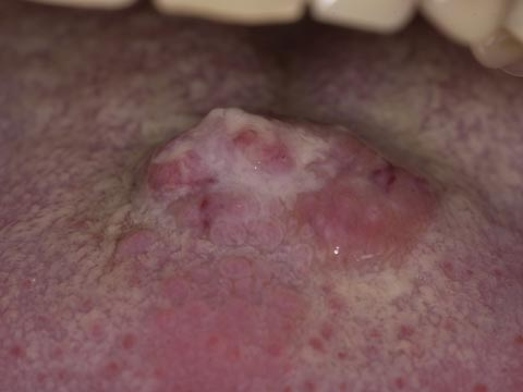 Oral cancer homeopathic treatment