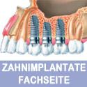 www.zahnimplante-online.at