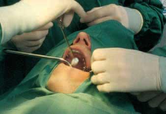 zahnarzt_implantologie