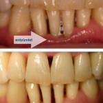enzündetes Zahnfleisch im Vergleich zu gesundem Zahnfleisch
