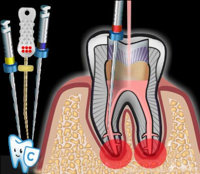 Nach einer Wurzelbehandlung können Zahnschmerzen aufgrund