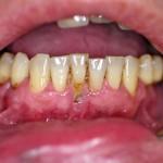 schwere Parodontitis und Zahnfleischrückgang