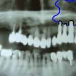 kieferhoehle_implantate