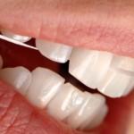 Zahnseide zur Zahnreinigung