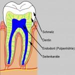 endodont