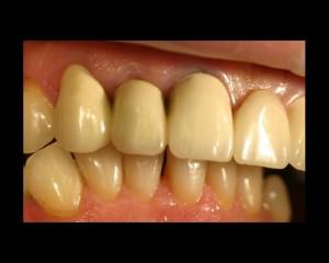 Gebiss mit Zahnkronen