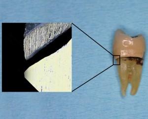 Zahnkrone am Zahn mit Randspalt