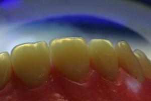 neue zähne mit blauem hintergrund